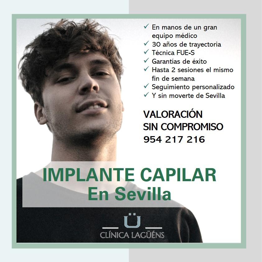 Implante capilar en Sevilla